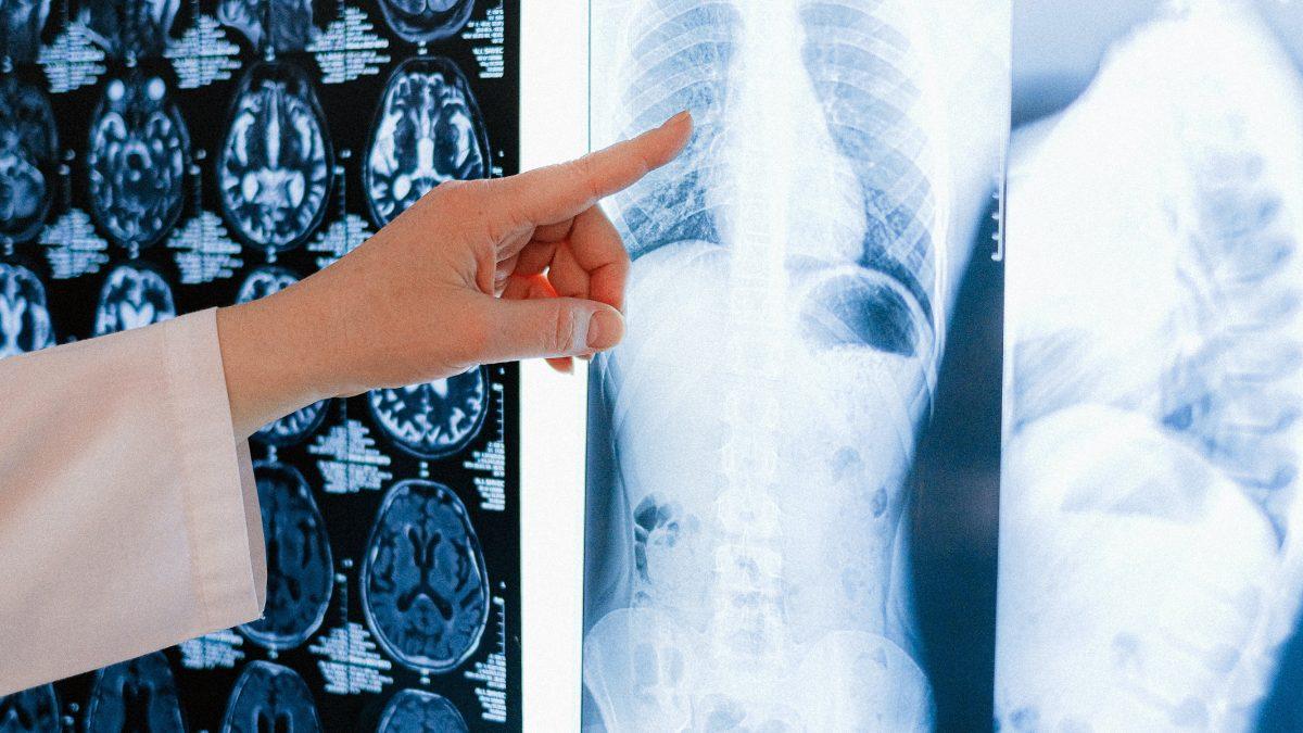 radiografia AI